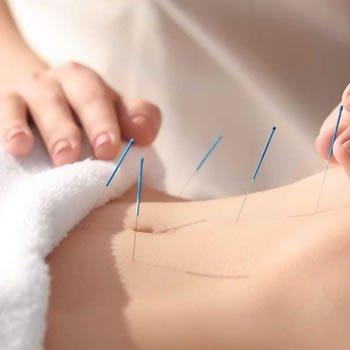 Kısırlık (infertilite) tedavisinde akupunktur nöral terapinin yeri var mı 22